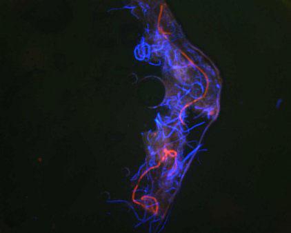 Fig 3. Autofluorescent fibers.